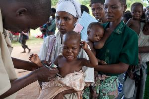 TESTING FOR SEVERE ACUTE MALNUTRITION, RURAL HEALTH CLINIC, MALAWI, AFRICA