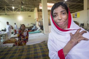 POTU, PREPARES FOR SECONDARY OPERATIONS TO SUPPORT HER RECOVERY FROM A COOKING ACCIDENT, HOPE HOSPITAL, COX'S BAZAR, BANGLADESH