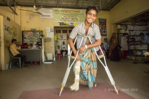 MOHAMMED SHARES HIS NEW CAPACITY TO WALK, HOPE HOSPITAL, COX'S BAZAR, BANGLADESH