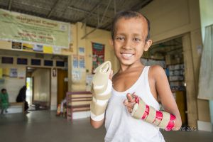 RIFAT SHARES HIS JOY, POST SURGERY, HOPE HOSPITAL, COX'S BAZAR, BANGLADESH