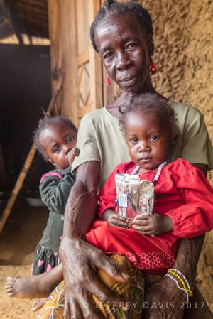 IN RECOVERY, MARIAMA AND HER GRANDMOTHER, PUJEHUN, SIERRA LEONE